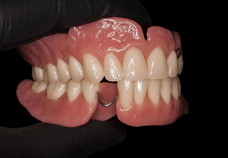 Последствия после удаления зуба
