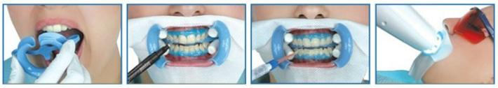 Профессиональное очищение зубов после курения