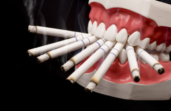 Табачный дым препятствует заживлению лунки после экстракции