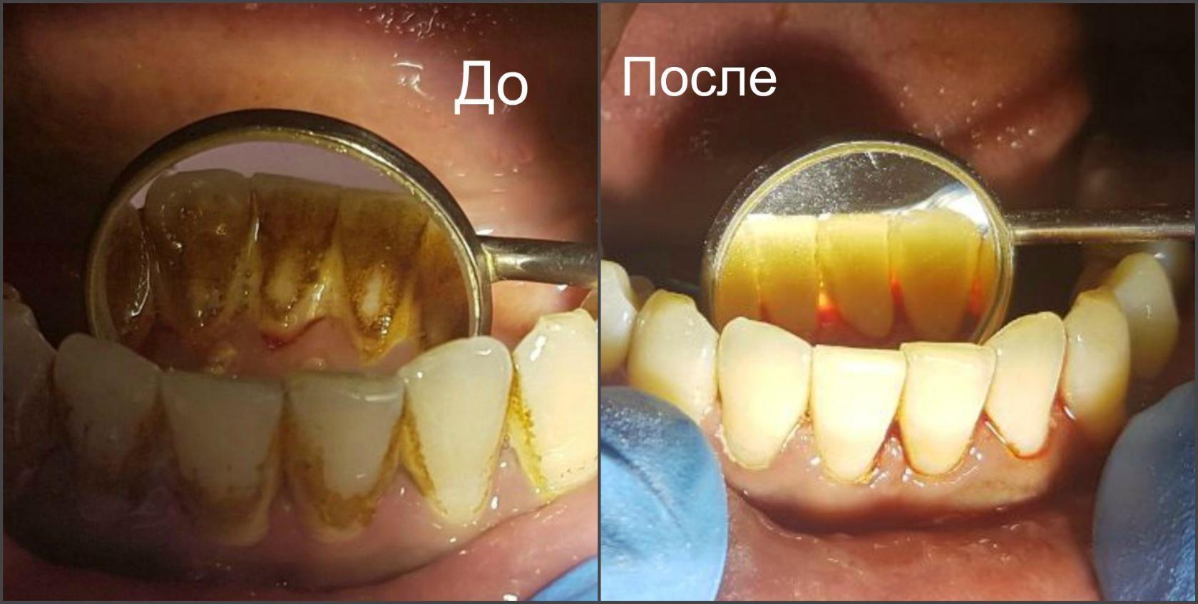 Чистка от налета зубов в домашних условиях 594