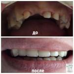 Металокерамика верхня челюсть