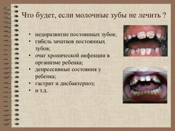 Что будет, если молочные зубы не лечить