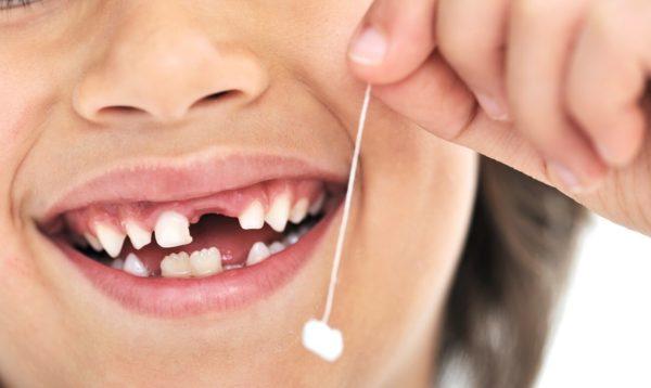 Молочные зубы меняются на коренные
