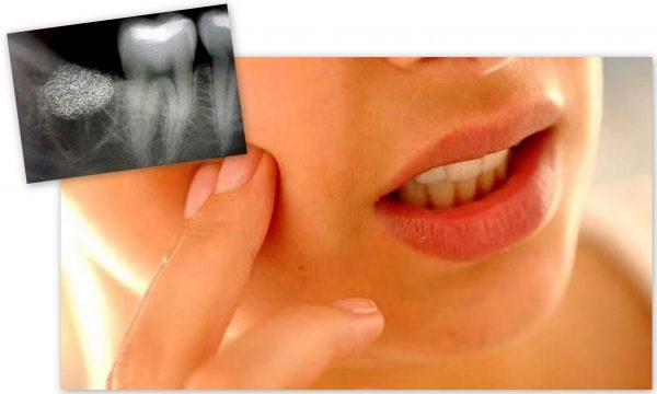 После удаления зуба могут возникнуть осложнения