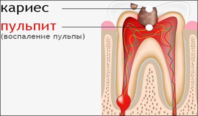 Развитие воспалительных процессов в пульпе
