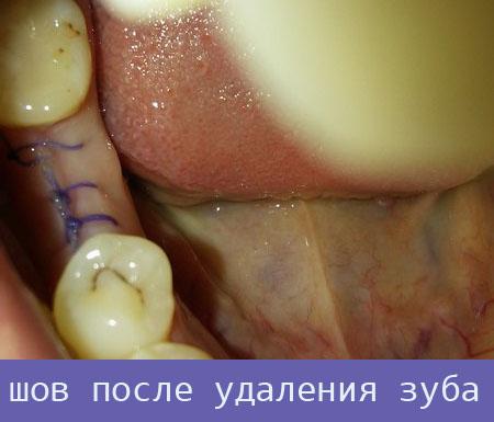 Шов после удаления зуба