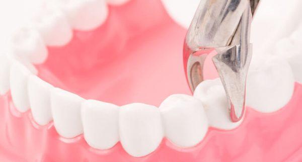 Существует определенная схема удаления зуба