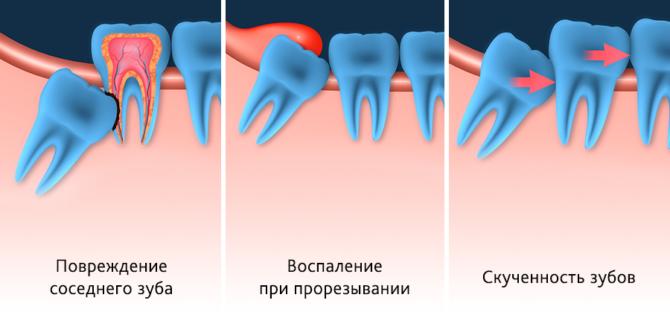 В каких случаях удаляют здоровый зуб мудрости