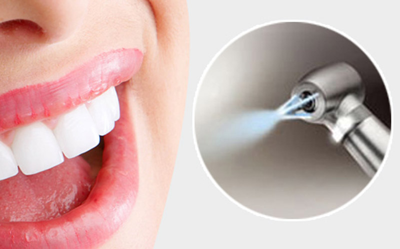 Аппаратные методы чистки зубов