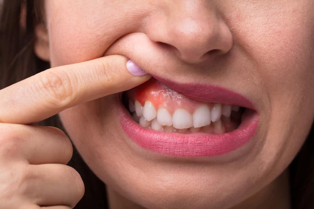 обезболивающий укол у стоматолога