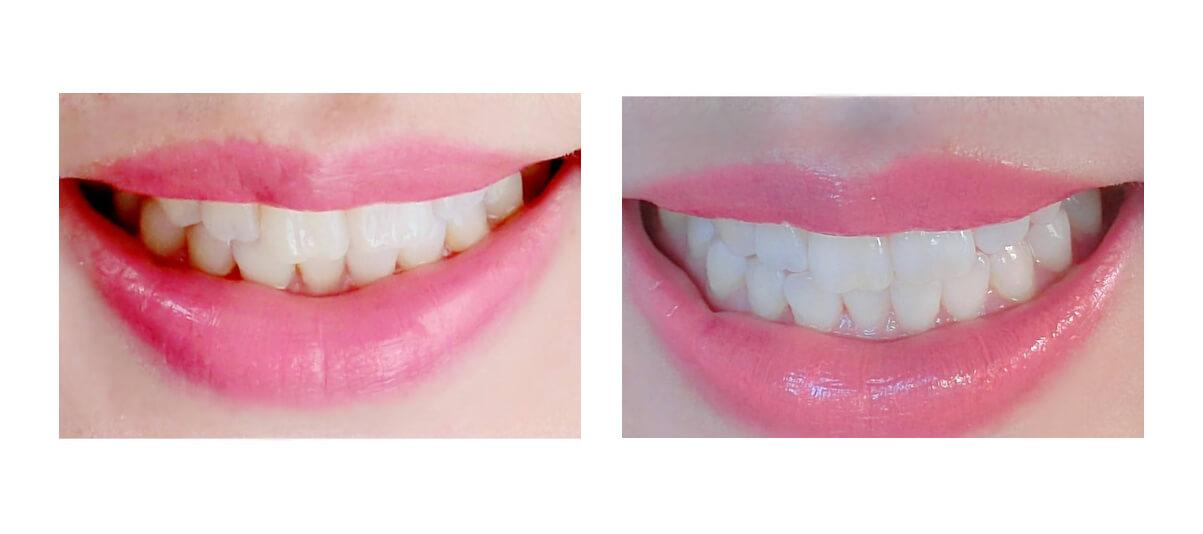 Фото зубов до и после отбеливания