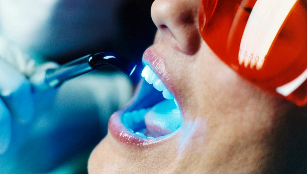 не вредно ли отбеливать зубы у стоматолога