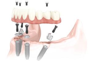 Имплантация по протоколу all-on-4