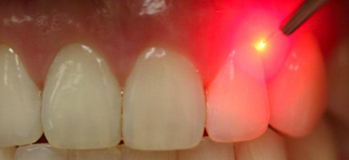 Использование лазера для удаления кисты