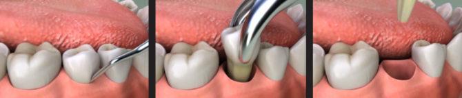 Извлечение удаленного зуба из лунки.