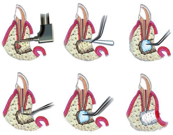 Как происходит удаление гнилого корня зуба с сохранением коронки