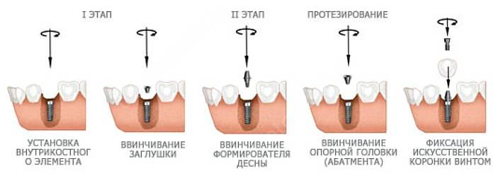 Как проводится установка