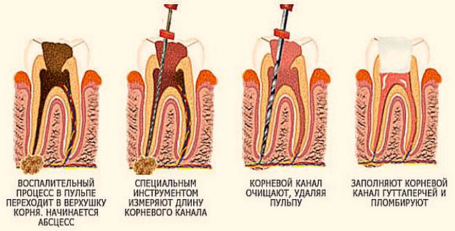 Как удаляют пульпу зуба