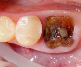 Когда белый налет на месте удаленного зуба опасен
