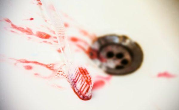 Кровоточивость десен