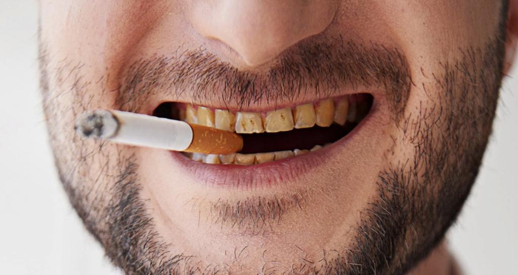 Курение приводит к образованию зубного камня
