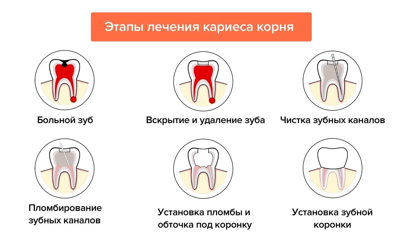 Лечение кариеса корня зуба