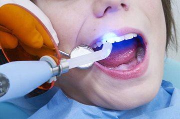 На коренные зубы