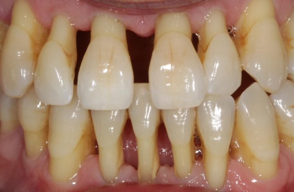 Как укрепить десна, если шатаются зубы?