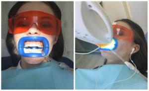 Особенности отбеливания зубов после ортодонтического лечения