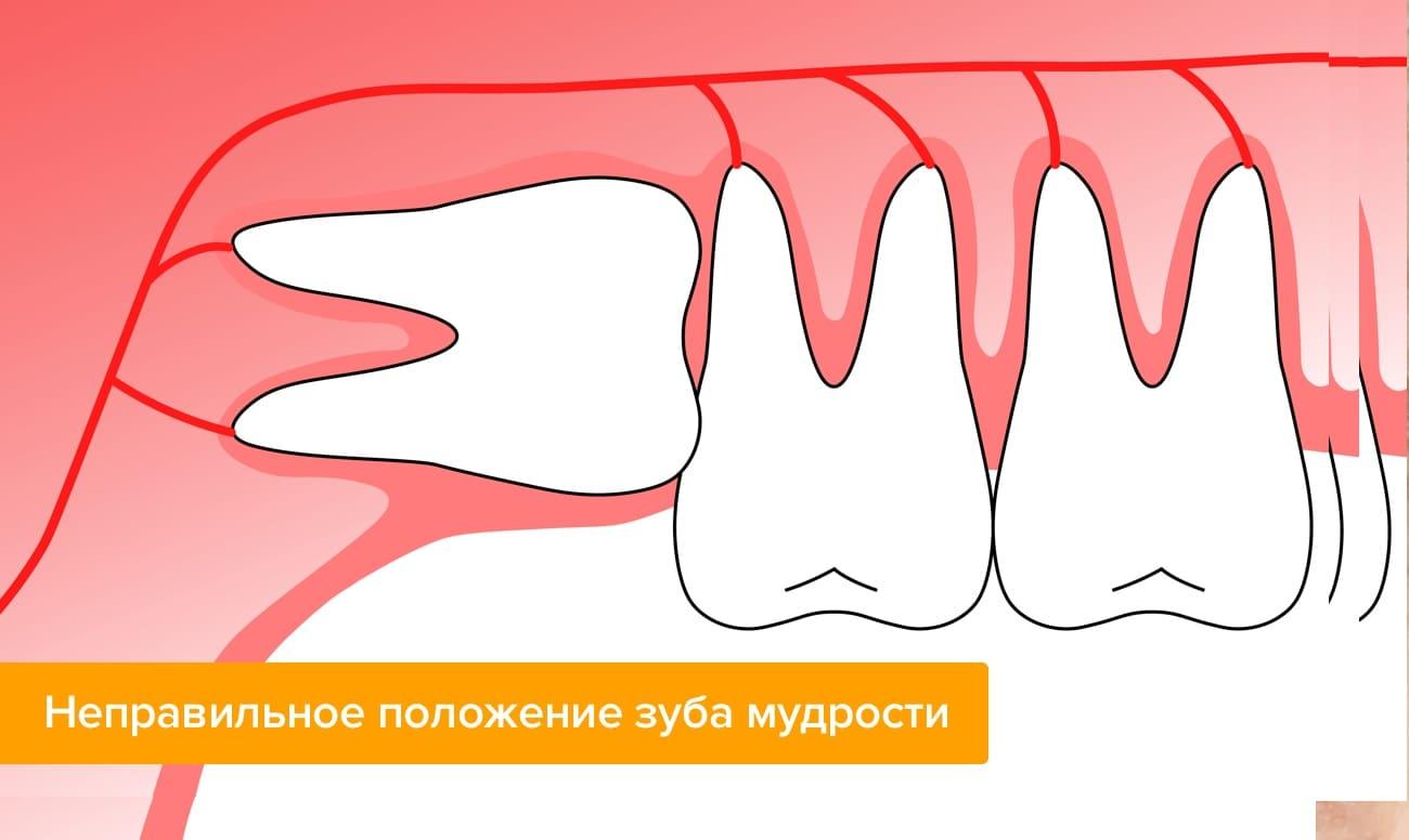 Особенности удаления зубов на верхней челюсти