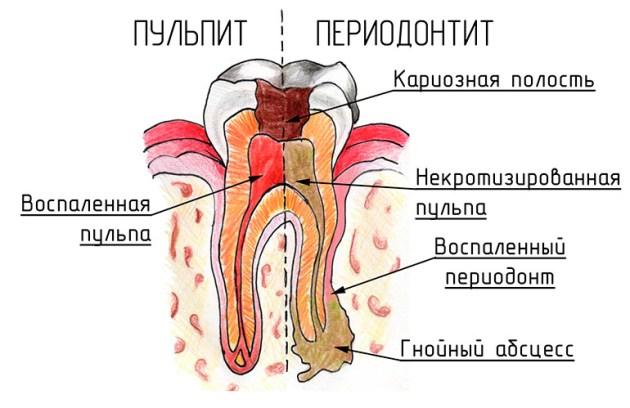 Почему болит зуб без кариеса?