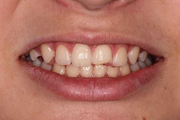 Передние верхние зубы могут болеть из-за травмы
