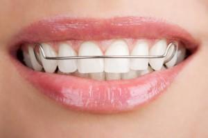 Показания к установке ортодонтических скоб