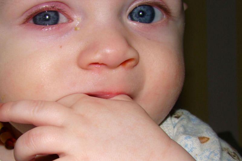 Правда ли, что прорезывание клыков - самое болезненное?