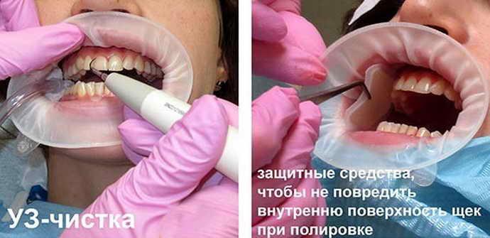 Проведение процедур