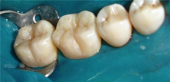 Реставрация зуба мудрости