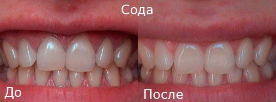 Способы отбеливания зубной эмали содой
