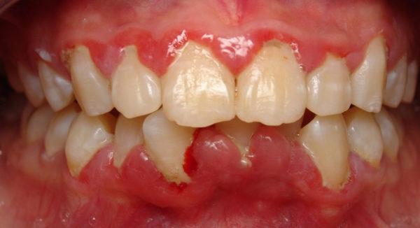 Стоматологические заболевания