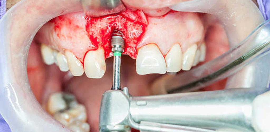 Так выглядит лоскутный метод установки имплантов