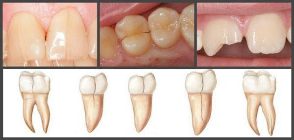 что делает стоматолог если трещина в зубе