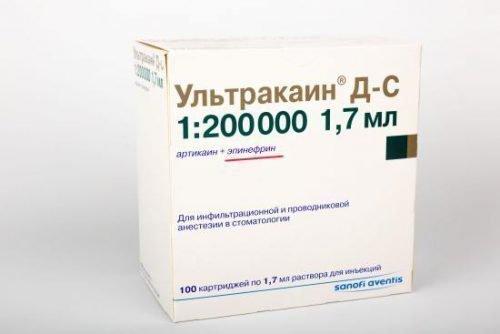 Ультракаин — один из самых эффективных анестетиков
