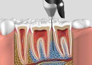 Внутрикостная анестезия вводится между зубами