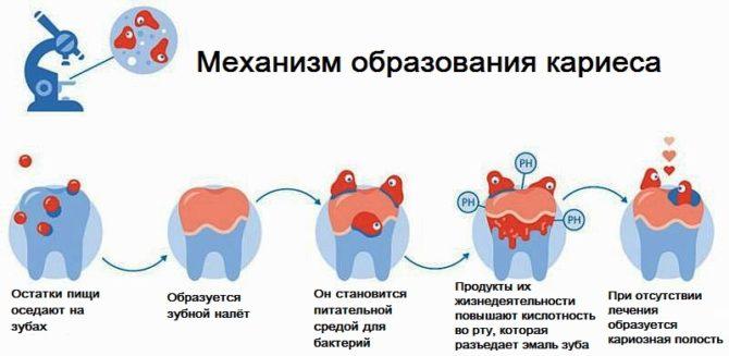 Почему гниют зубы у взрослых