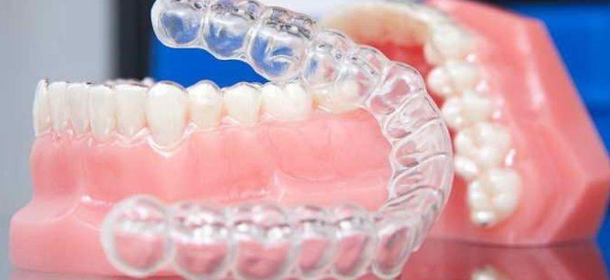 что такое капа для зубов для исправления прикуса