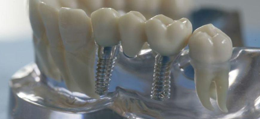что такое мост на зубы и как он выглядит