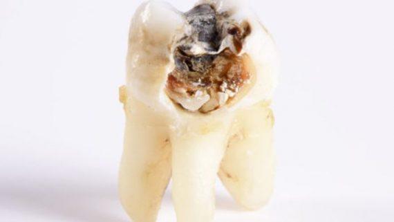Если зуб сгнил под корень его можно спасти