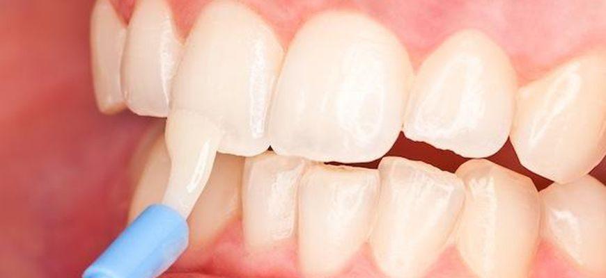Глубокое фторирование зубов у детей что это такое