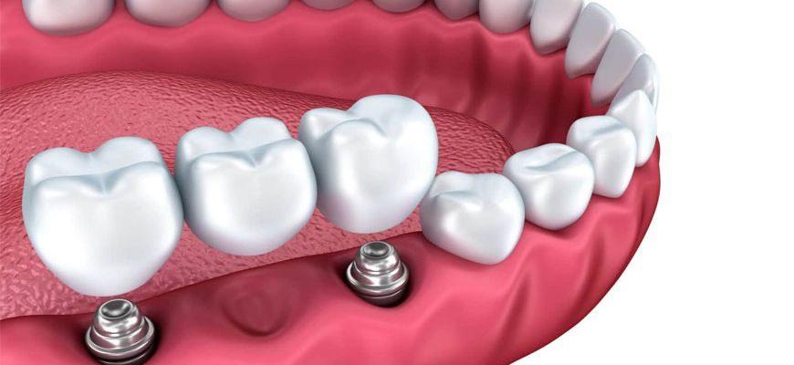 Импланты на нижнюю челюсть при отсутствии жевательных зубов