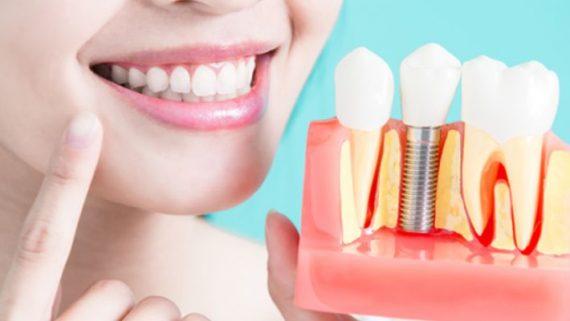 имплантация зубов что это и как она происходит