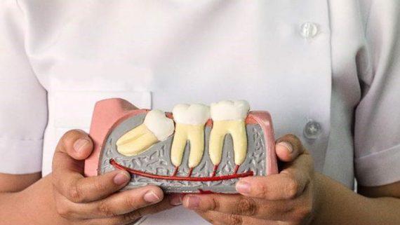 Как растет зуб мудрости что с ним делают
